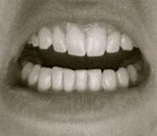 erin j bernard, erinjbernard.net, teeth